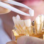 Cele mai comune intrebari despre implanturi dentare. Raspunsuri, aici!
